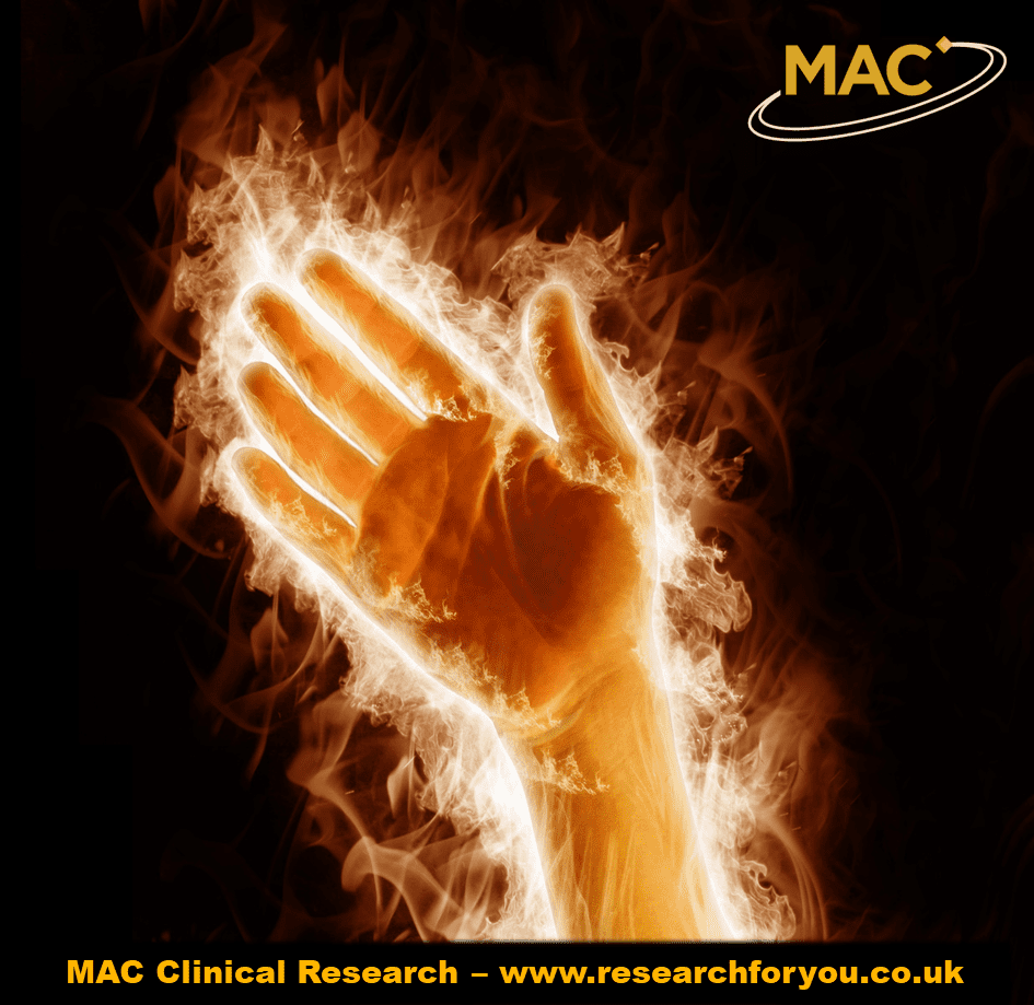 Complex Regional Pain Syndrome with MAC